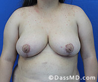 Breast Reduction Treatment Results Beverly Hills - After image set 5 - 1