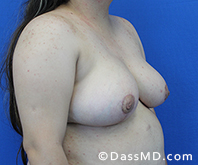 Breast Reduction Treatment Results Beverly Hills - After image set 5 - 2