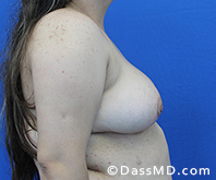Breast Reduction Treatment Results Beverly Hills - After image set 5 - 3