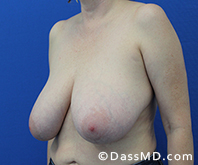 Breast Reduction Treatment Results Beverly Hills - Before image set 6 - 2