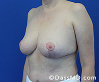 Breast Reduction Treatment Results Beverly Hills - After image set 6 - 2