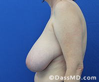 Breast Reduction Treatment Results Beverly Hills - Before image set 6 - 3