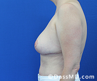 Breast Reduction Treatment Results Beverly Hills - After image set 6 - 3