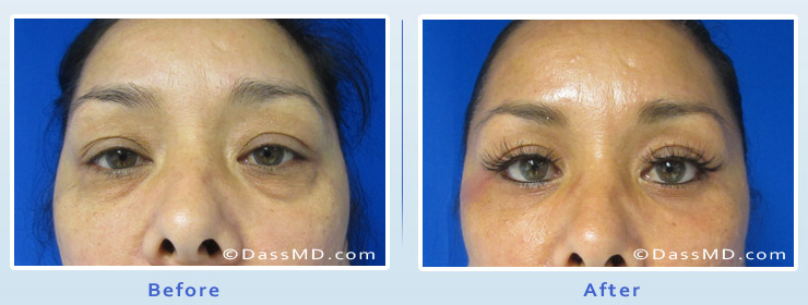 Dr Dennis Dass, MD Actual patient Before and After
