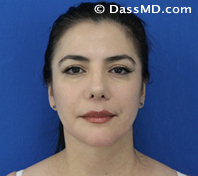 Beverly Hills Facelift and Facial Fat Grafting Before and After Photos - After - Case 1-1