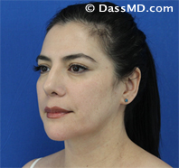 Beverly Hills Facelift and Facial Fat Grafting Before and After Photos - After - Case 1-2