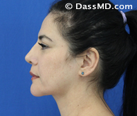 Beverly Hills Facelift and Facial Fat Grafting Before and After Photos - After - Case 1-3