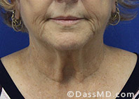 Beverly Hills Facelift and Facial Fat Grafting Before and After Photos - Before - Case 2-1