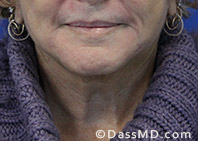 Beverly Hills Facelift and Facial Fat Grafting Before and After Photos - After - Case 2-1