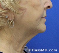 Beverly Hills Facelift and Facial Fat Grafting Before and After Photos - Before - Case 2-3