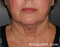 Beverly Hills Facelift and Facial Fat Grafting Before and After Photos - Before - Case 3-1