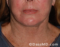Beverly Hills Facelift and Facial Fat Grafting Before and After Photos - After - Case 3-1