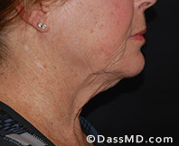Beverly Hills Facelift and Facial Fat Grafting Before and After Photos - Before - Case 3-2