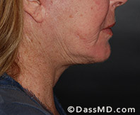 Beverly Hills Facelift and Facial Fat Grafting Before and After Photos - After - Case 3-2