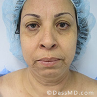 Beverly Hills Facelift and Facial Fat Grafting Before and After Photos - Before - Case 4-1