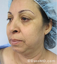Beverly Hills Facelift and Facial Fat Grafting Before and After Photos - Before - Case 4-2