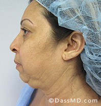Beverly Hills Facelift and Facial Fat Grafting Before and After Photos - Before - Case 4-3