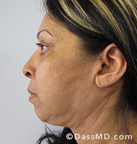 Beverly Hills Facelift and Facial Fat Grafting Before and After Photos - After - Case 4-3
