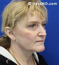Beverly Hills Facelift and Facial Fat Grafting Before and After Photos - After - Case 6-2