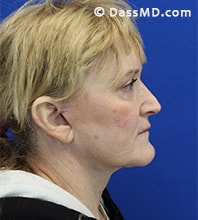 Beverly Hills Facelift and Facial Fat Grafting Before and After Photos - After - Case 6-3