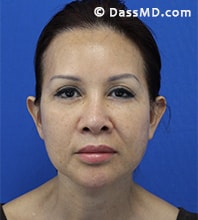 Beverly Hills Facelift and Facial Fat Grafting Before and After Photos - After - Case 7-1