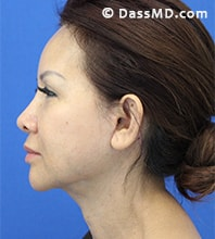 Beverly Hills Facelift and Facial Fat Grafting Before and After Photos - After - Case 7-3