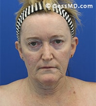 Beverly Hills Facelift and Facial Fat Grafting Before and After Photos - Before - Case 6-1