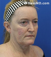 Beverly Hills Facelift and Facial Fat Grafting Before and After Photos - Before - Case 6-2