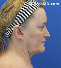 Beverly Hills Facelift and Facial Fat Grafting Before and After Photos - Before - Case 6-3