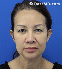 Beverly Hills Facelift and Facial Fat Grafting Before and After Photos - Before - Case 7-1