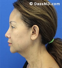 Beverly Hills Facelift and Facial Fat Grafting Before and After Photos - Before - Case 7-3
