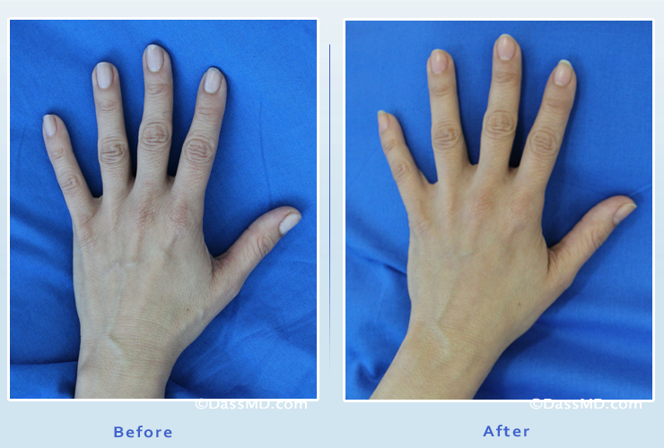 Hand Rejuvenation Results Beverly Hills Before And After