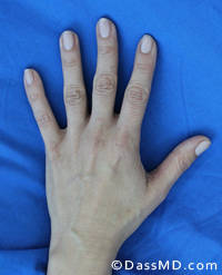 Hand Rejuvenation Results Beverly Hills - Before image set 1 view 1