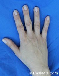 Hand Rejuvenation Results Beverly Hills - Before image set 1 view 2