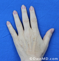 Hand Rejuvenation Results Beverly Hills - Before image set 2 view 1