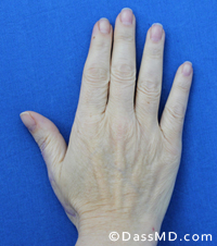 Hand Rejuvenation Results Beverly Hills - Before image set 2 view 2