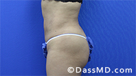 Liposuction Treatment Results Beverly Hills- Liposuction After 34 - 3