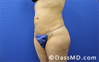 Liposuction Treatment Results Beverly Hills- Liposuction After 35 - 2