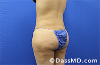 Liposuction Treatment Results Beverly Hills- Liposuction After 35 - 4