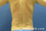 Beverly Hills Liposuction for Men Treatment Results Before and After - Before View 12 - 3
