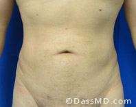 Beverly Hills Liposuction for Men Treatment Results Before and After - Liposuction After 6 - 1