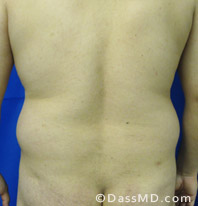 Beverly Hills Liposuction for Men Treatment Results Before and After - Liposuction Before 6 - 2