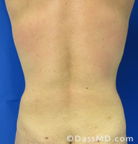 Beverly Hills Liposuction for Men Treatment Results Before and After - Liposuction After 6 - 2