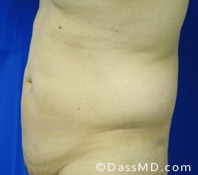 Beverly Hills Liposuction for Men Treatment Results Before and After - Liposuction Before 6 - 3
