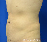 Beverly Hills Liposuction for Men Treatment Results Before and After - Liposuction After 6 - 3
