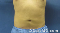 Beverly Hills Liposuction for Men Treatment Results Before and After - After case 24-1