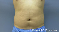 Beverly Hills Liposuction for Men Treatment Results Before and After - Before case 24-1