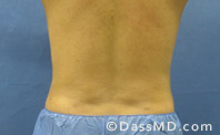 Beverly Hills Liposuction for Men Treatment Results Before and After - After case 24-3