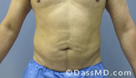 Beverly Hills Liposuction for Men Treatment Results Before and After - After case 28-1