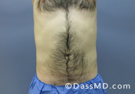 Beverly Hills Liposuction for Men Treatment Results Before and After - After case 30-1
